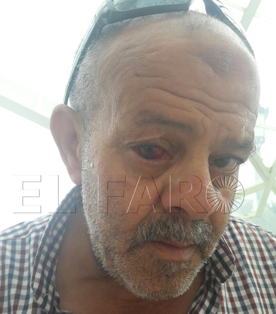 "Un taxista acusa a un  guardia civil de agredirle: ""Por poco me saca un ojo"""